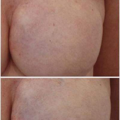 skin needling piersi