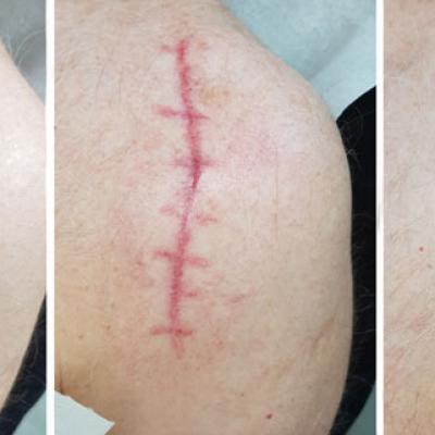 skin needling ramię efekt