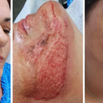 skin needling twarz, efekt